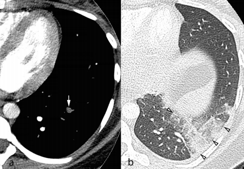 Axial CTPA images in the soft tissue and lung windows from a 25-year-old pregnant woman presenting with acute chest pain