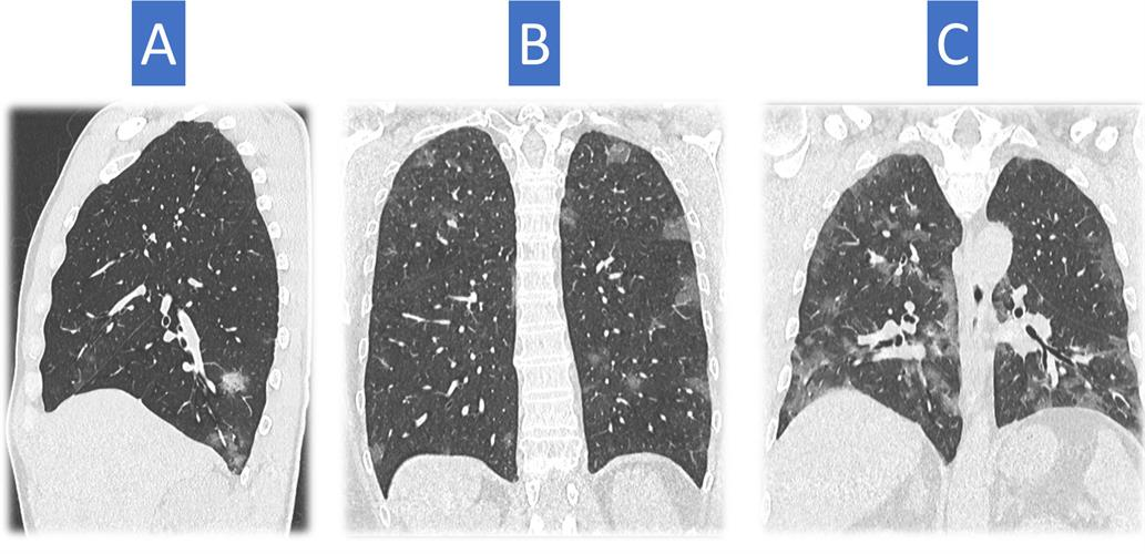 CT scans of three different patients depict typical findings for COVID-19 pneumonia