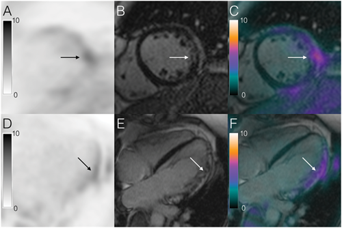 Gadolinium, FDG, and PET-MRI