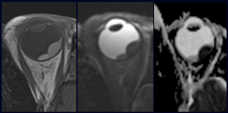 In The Noncontrast T1 Weighted Image Left And T2 Center There Is An Intraocular Mass But Its Hard To Discern If Both A Tumor