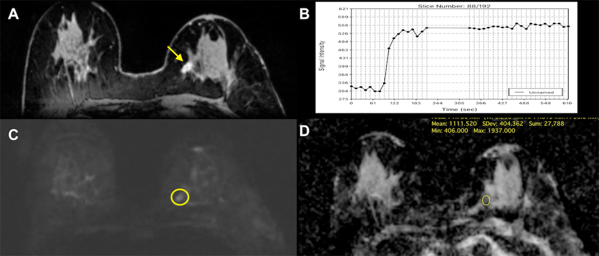 MR images of invasive ductal carcinoma in the left breast of a 71-year-old