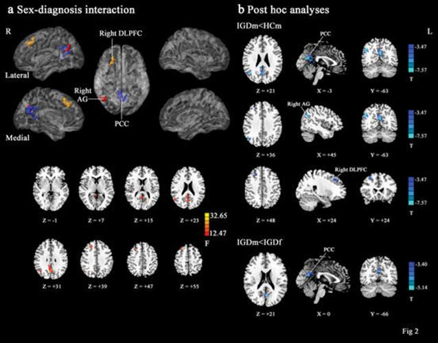 Functional connectivity differences between study participants