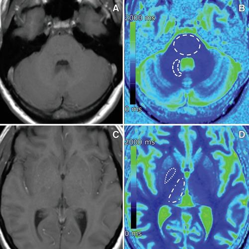 MR images of a 40-year-old woman with osteosarcoma who received 20 single doses of gadobutrol between 2007 and 2017