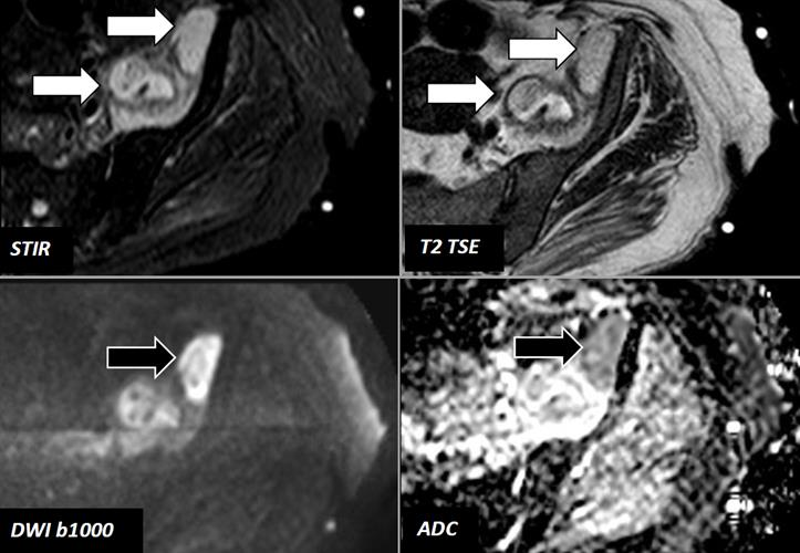 MR images of 78-year-old woman with fever and left hip pain