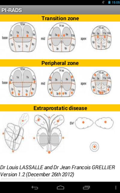 Cosa indica il PI-RADS in un referto di risonanza magnetica multiparametrica prostatica?