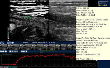 Contrast-enhanced ultrasound