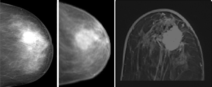 MR mammography