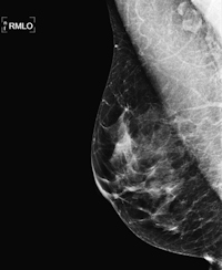 Normal mammography image of 54-year-old woman