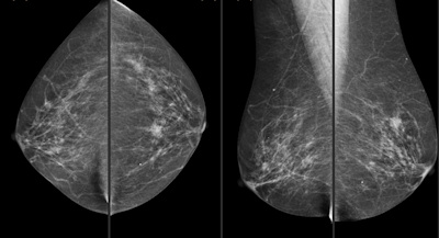 CAD with single reader works for breast screening, Spanish say