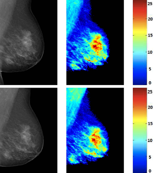 Reacquired mammograms of the same patient and their corresponding breast density maps from Volpara