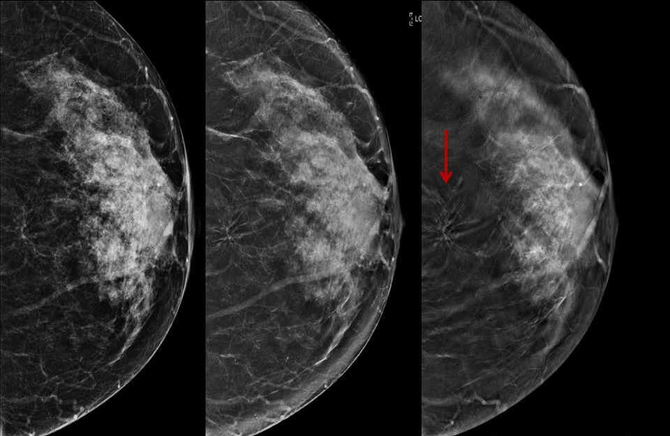 Architectural distortion in the left breast identified as invasive ductal carcinoma