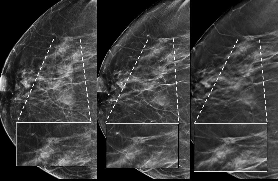 Spiculated nodule in the right breast identified as invasive ductal carcinoma