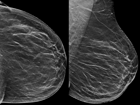 54-year-old woman with no abnormality on synthesized 2D mammograph