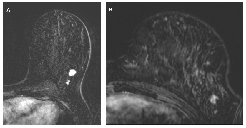 Study Over 30 Of Breast Cancers Missed On Breast Mri