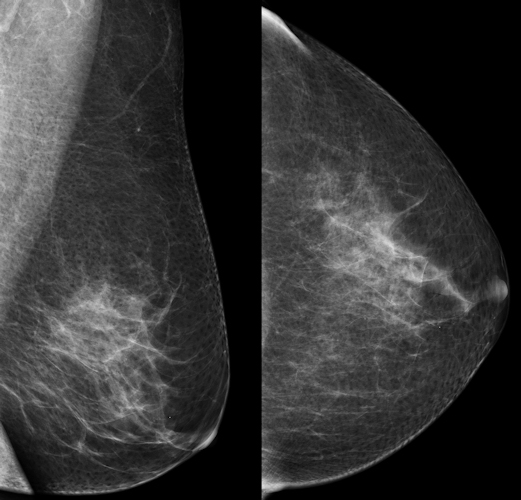 Oblique and craniocaudal screening mammograms of a 51-year-old woman show no abnormality