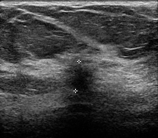 Ultrasound shows a 7-mm ductal invasive carcinoma (calipers)