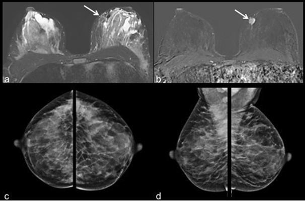 40-year-old patient with invasive ductal carcinoma in the left breast at 9 o