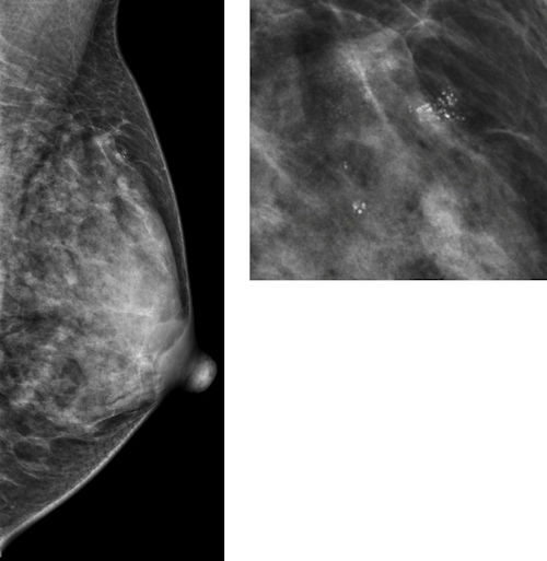 Benign breast disease, as seen on mammography