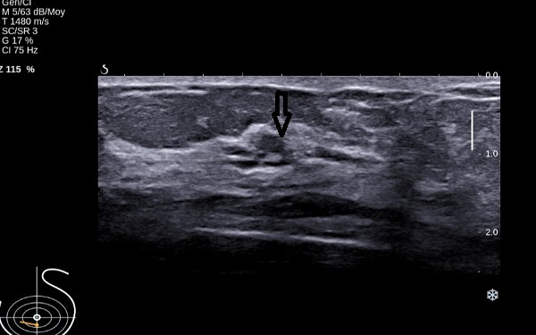Second-look ultrasound demonstrates three ducts of normal caliber in correlation