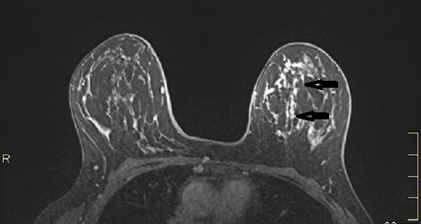 MRI axial plane after injection with fat saturation shows a large nonmass micronodular enhancement with segmental distribution in the inner left quadrants