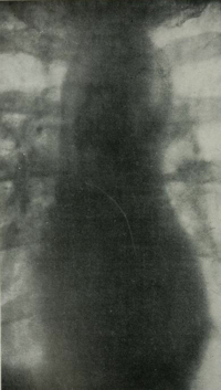 1903 radiograph of the heart