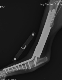Distal tibia custom modular endoprosthesis with hydroxyapatite collar and tarsal arthrodesis