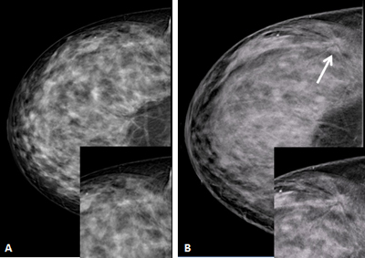 Can find breasts are heterogeneously dense confirm. happens