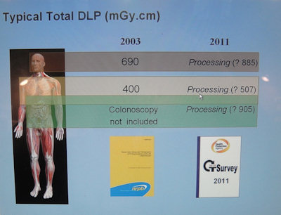 typical total DLP data