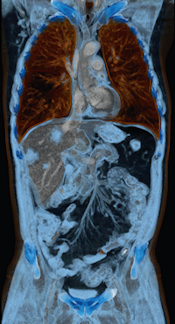 Liver tumor examined with a Somatom Perspective scanner from Siemens Healthcare
