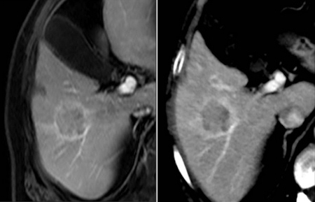 3-tesla MRI examination of the liver compared with a CT image using the Iterative Model Reconstruction technique