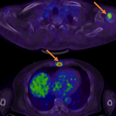 New PET tracer advances prostate cancer detection
