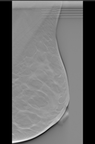breast tomosynthesis cme 2012