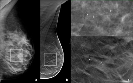 breast cancer from calcification